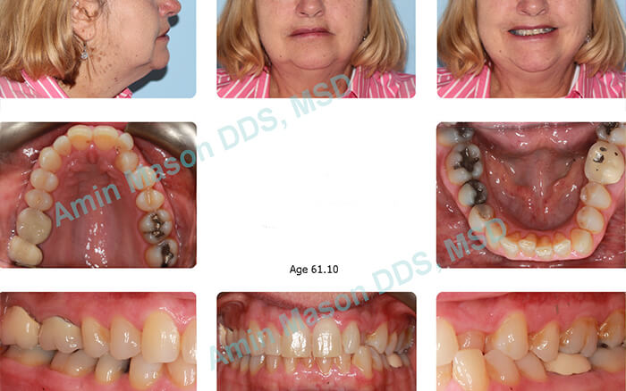 before adult braces