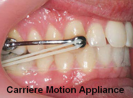 carriere motion appliance