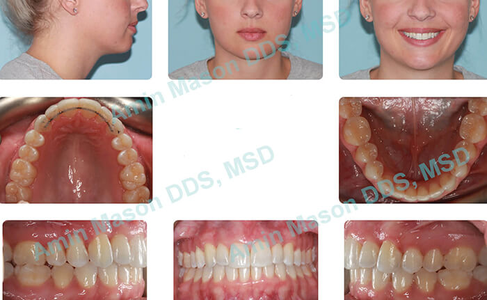 invisalign after case 2