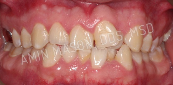 Comprehensive Braces Case before