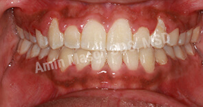 Comprehensive Braces Case after