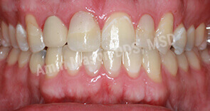 invisalign case 10 after