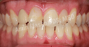 invisalign case 10 before