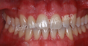 invisalign case 3 after
