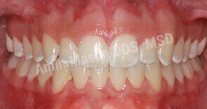 invisalign case 4 after