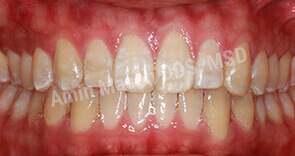 invisalign case 6 after
