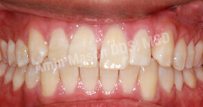 invisalign case 6 before