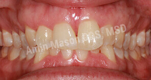 invisalign case 8 before