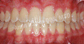 invisalign case 9 after