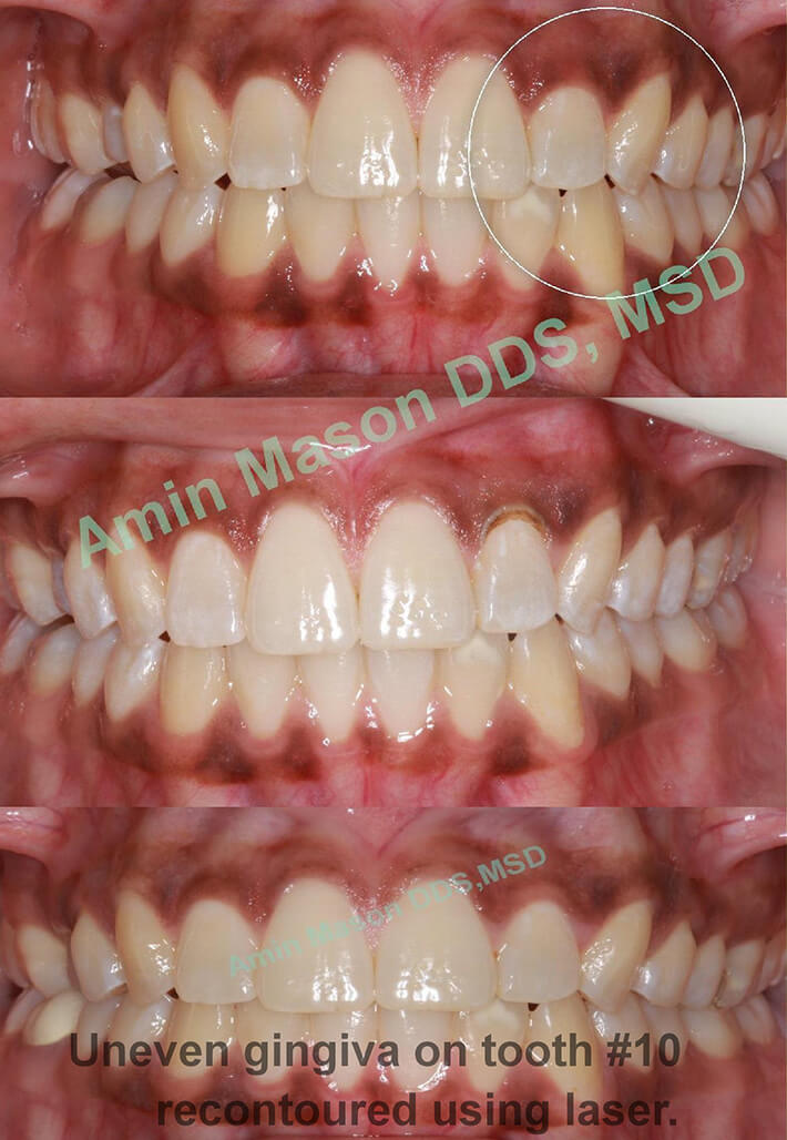 uneven gingiva recontouring