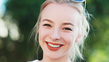 young woman smiling with braces outside