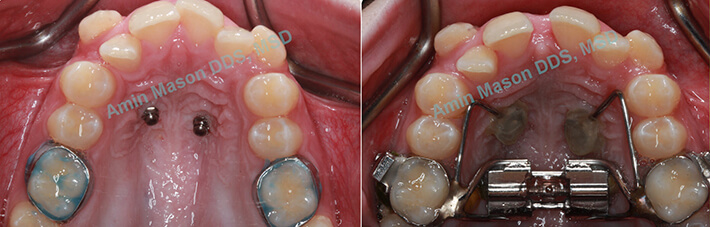 crossbite case 1