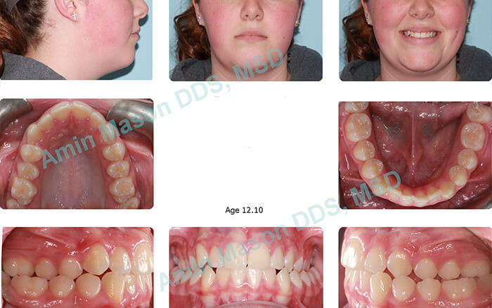before traditional braces