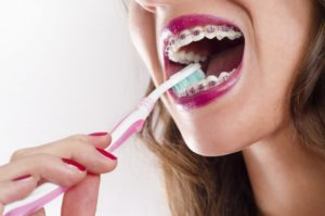 A woman with braces brushing her teeth.