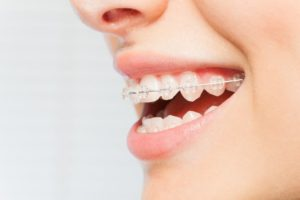 A person wearing clear braces.