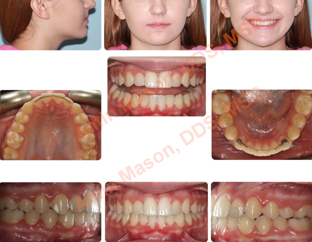 teenager after restorations